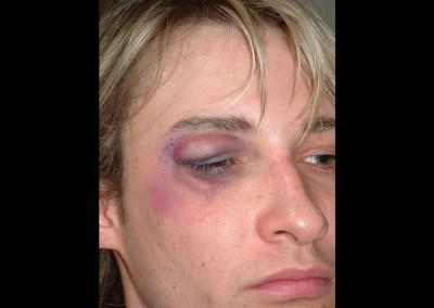 Prosthetic Gesichtsteile